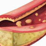 동맥경화에 좋은 음식 9가지 알고 가기